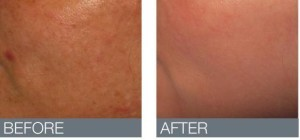 before and after of skinBrite Peel